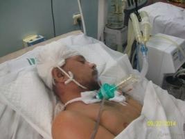 Одесский солдат получил серьезное ранение на учениях