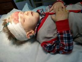В Одессе полиция ищет родителей брошенного избитого мальчика
