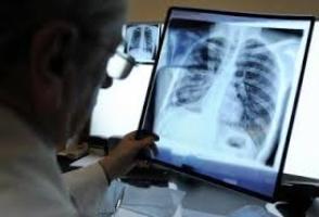 В Херсонском облздраве рассказали об успехах в борьбе с туберкулезом