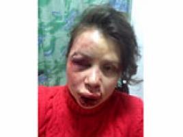 Под Киевом зверски избили журналистку и активистку Евромайдана