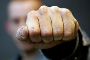 Житель Одесской области получил пулю в ногу во время драки с милиционерами