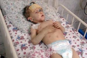 Родители не торопятся забирать из больницы избитого малыша, найденного в Одессе