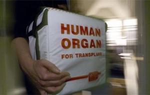 СБУ задержала группу «черных трансплантологов»