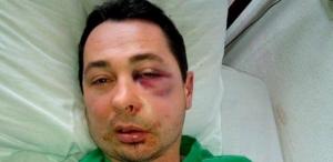 На Херсонщине жестоко избили депутата фракции Порошенко