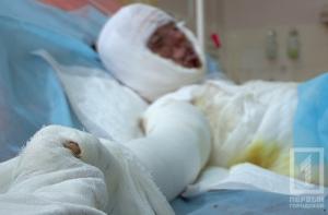 В Одесской области мальчик получил ожоги 40% тела, играя на железной дороге