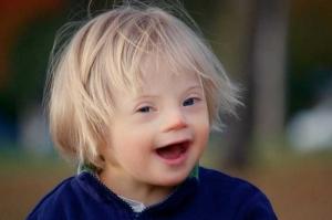 В Херсоне собирают деньги на игровой реабилитационный комплекс для детей с синдромом Дауна