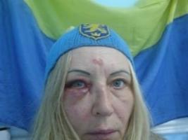 В Одесской области пьяный военный избил женщину-волонтера